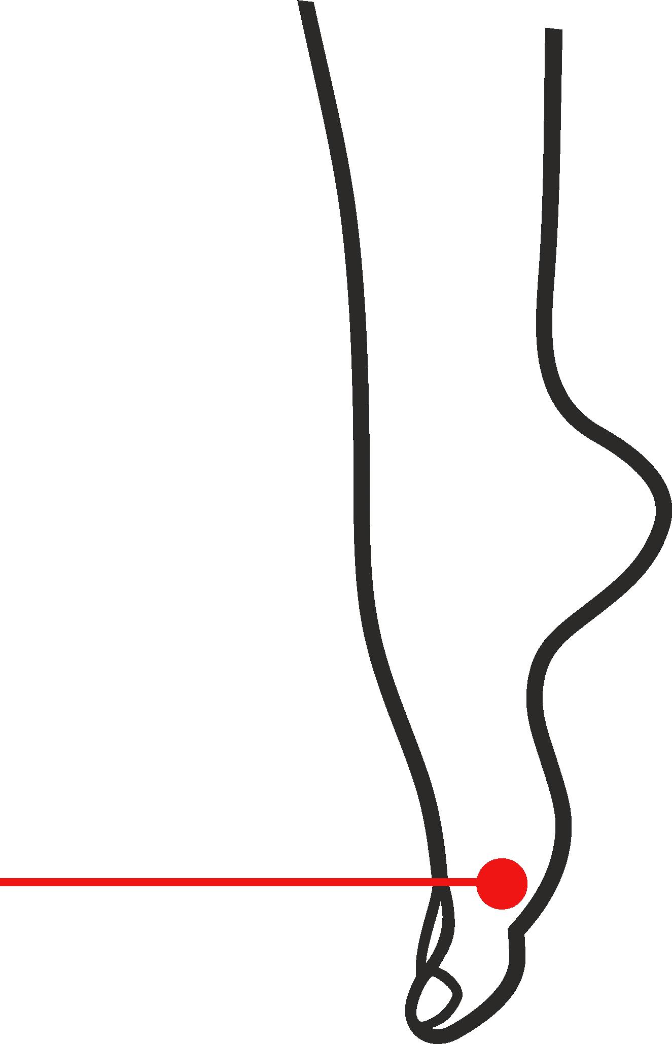Laser Podologico